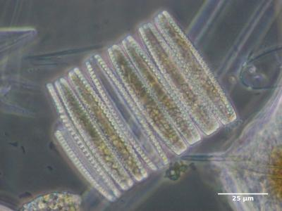 Fragilariopsis kerguelensis