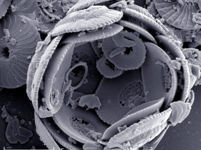 Reticulofenestra Pseudoumbilicus